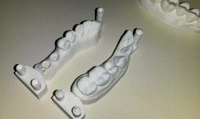 Arcade dentaire